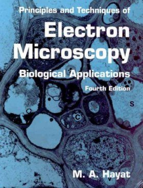 Principles and Techniques of Electron Microscopy
