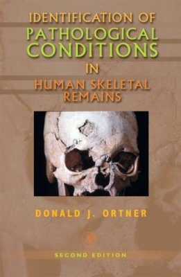 Identification of Pathological Conditions in Human Skeletal Remains