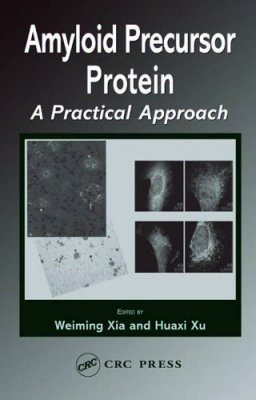 Amyloid Precursor Protein: A Practical Approach