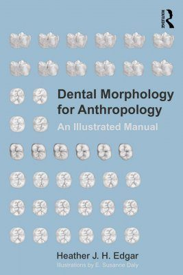 dental morphology for anthropology an illustrated manual heather rh nhbs com Dental Anatomy Worksheets dental morphology an illustrated guide pdf free download