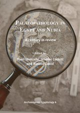 Palaeopathology in Egypt and Nubia