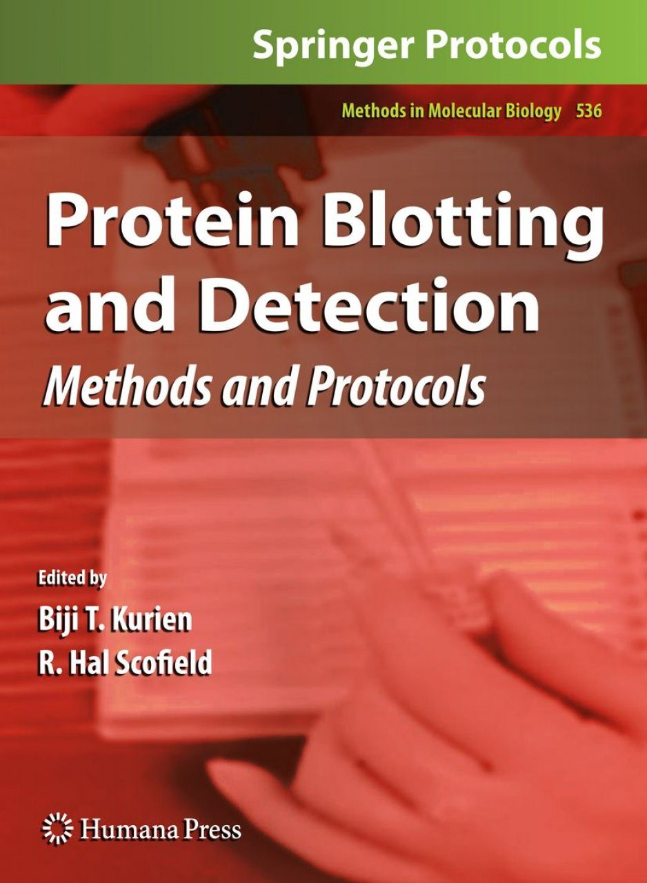 Protein Blotting and Detection
