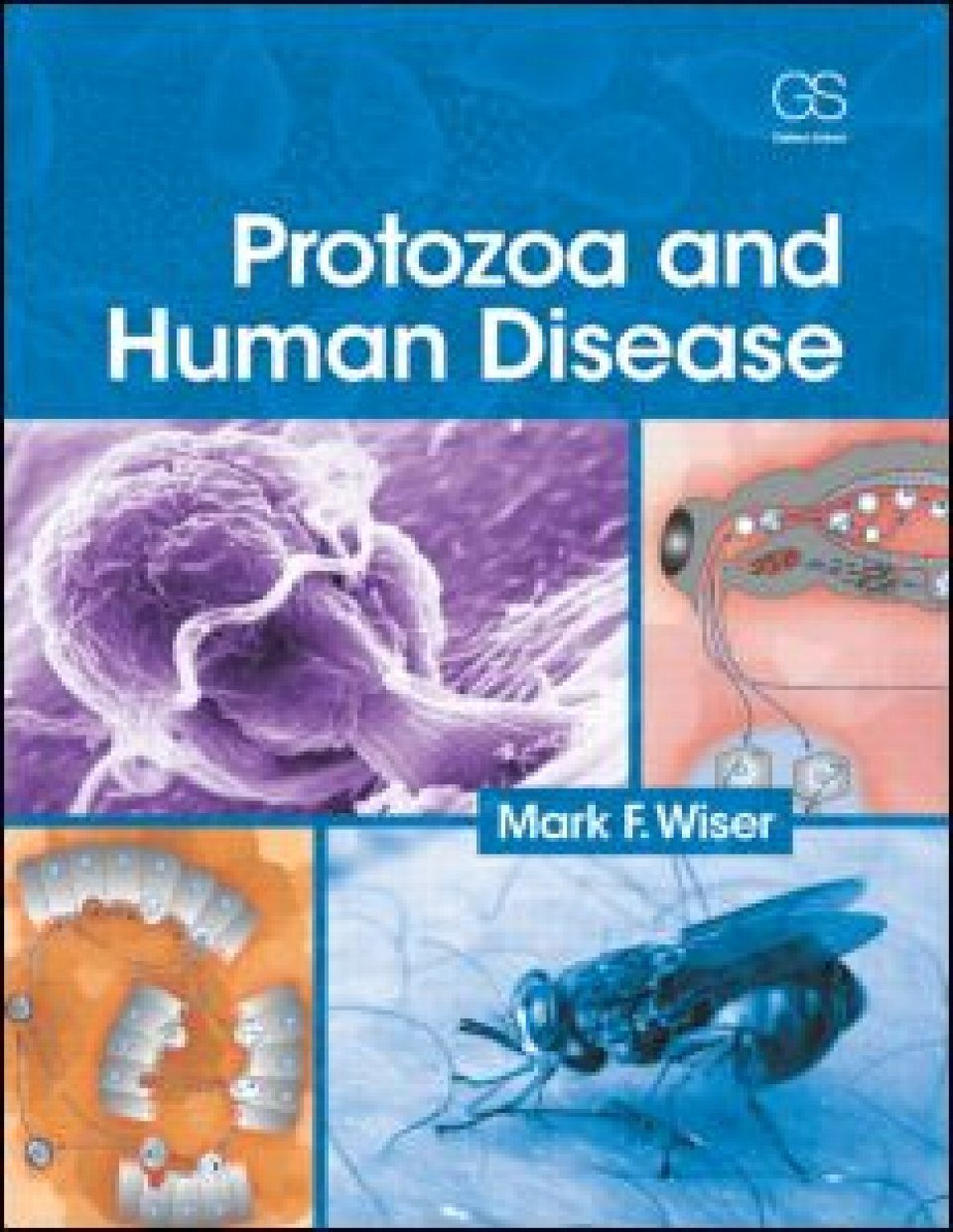 Protozoa and Human Disease